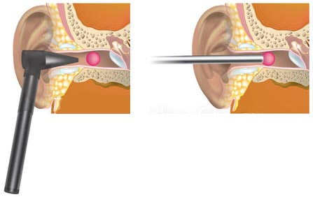 ear wax microsuction