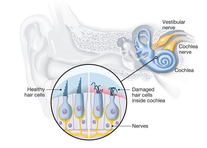 tinnitus treatment brisbane